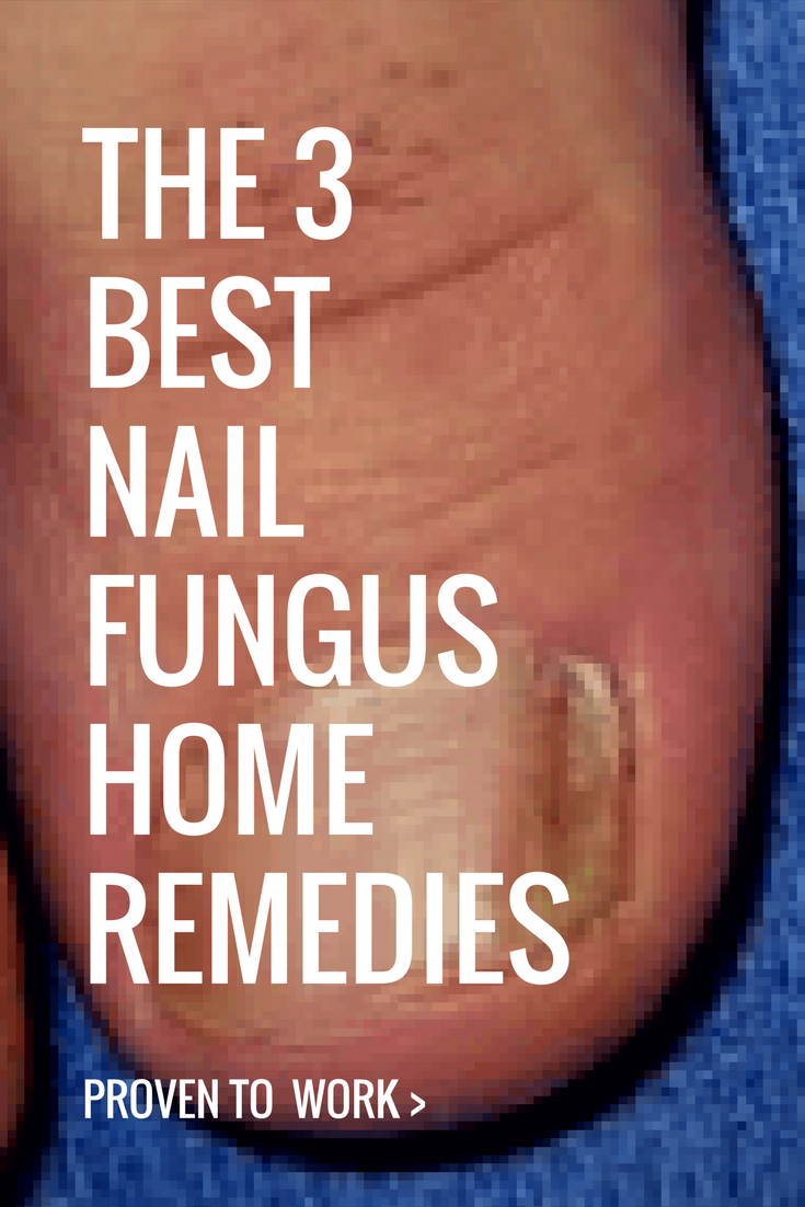 3 Home Remedies For Nail Fungus That Are Proven To Work... |