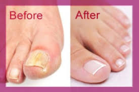 toenail fungus before and after pictures