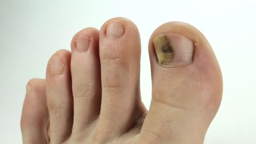 toenail fungus pictures early stage
