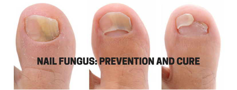 nail fungus pictures