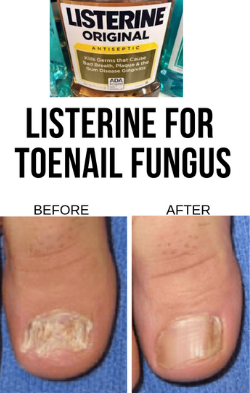 How To Use Listerine For Toenail Fungus Effortlessly |