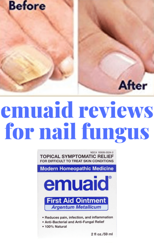 The Ultimate Emuaid Reviews For Nail Fungus Verified